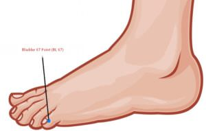 Pedicure to Induce Labor-BL 67